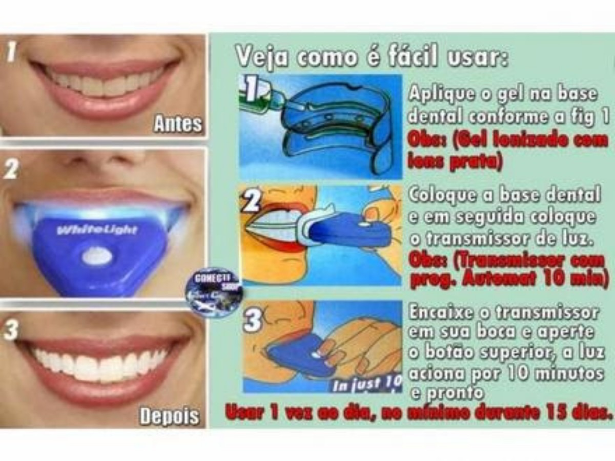Tag Kit Clareamento Dental Caseiro Como Usar
